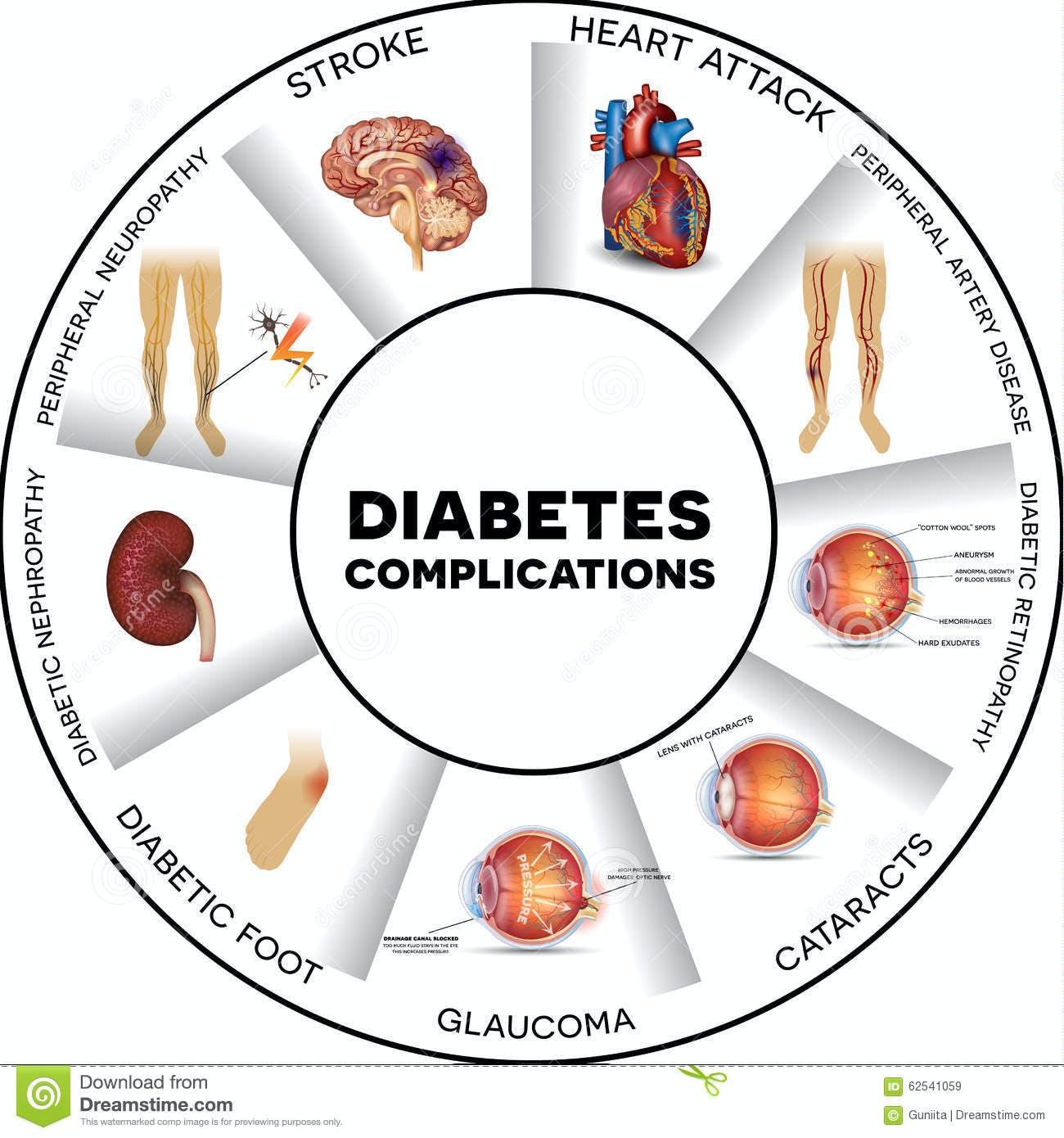 Diabetic Control